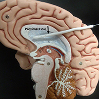 A model illustrating the insertion of a new catheter design for hydrocephalus patients.
