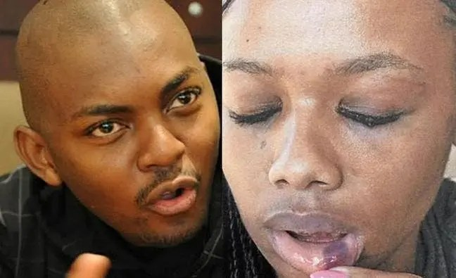 Bonang beaten up by her boyfriend Euphonik