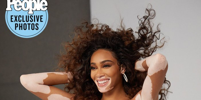 Winnie Harlow Feels Proud to 'Show Black Hair in All Its Glory' as New Paul Mitchell Ambassador