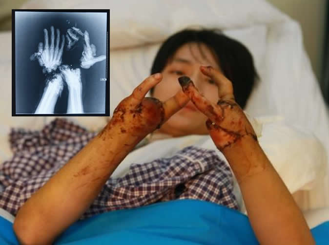 Doctors make claw-like fingers after man loses hands in ...