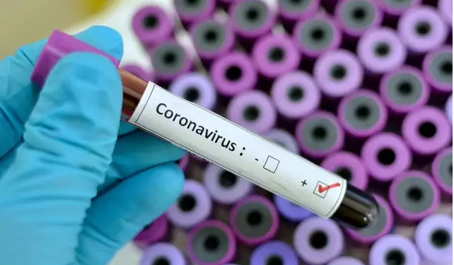 JUST IN: Vaccine for treatment of coronavirus ready soon – Iwu