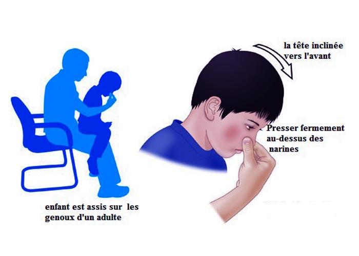 Bron Premiers Secours > le saignement de nez