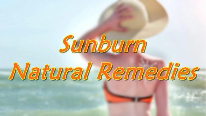 Natural remedies for sunburns