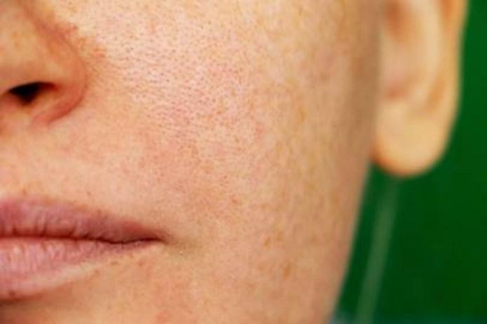 Human Body - pores