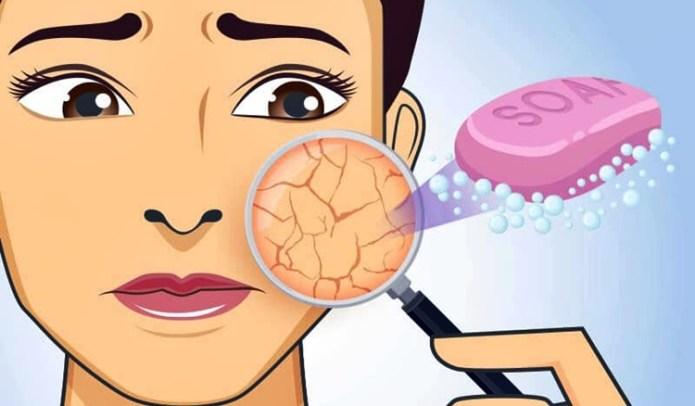 dry skin soaps