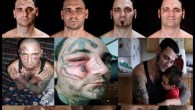 Ex-skinhead gets extensive surgery to remove racist face tattoos Meet Bryon Widner. He used to be a white supremacist. When Widner left the movement in 2006, he had a lot […]