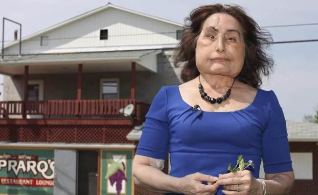 Connie Culp First Face Transplant Recipient In U S Dies