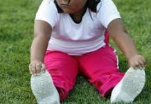 Obesity Childhood