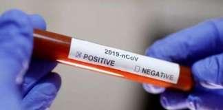 Cov Positive