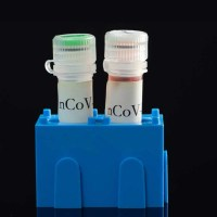 Gonoshasthaya Kendra claims to develop cheaper and faster COVID-19 detection kit