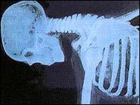 Los problemas en la espalda pueden provocar un dolor insoportable.