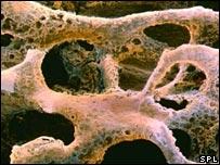El tratamiento protege contra la pérdida de masa ósea.