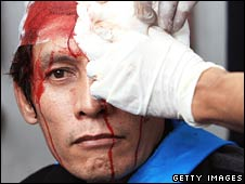Thai protester injured in clashes with police in Bangkok on 7 October