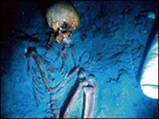 TB skeleton