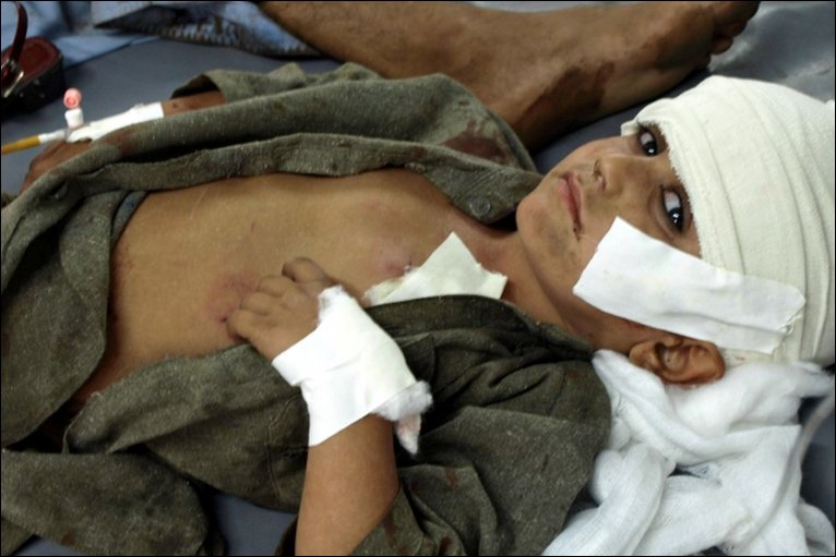 An injured Pakistani boy in hospital