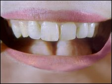 Mouth (file image)