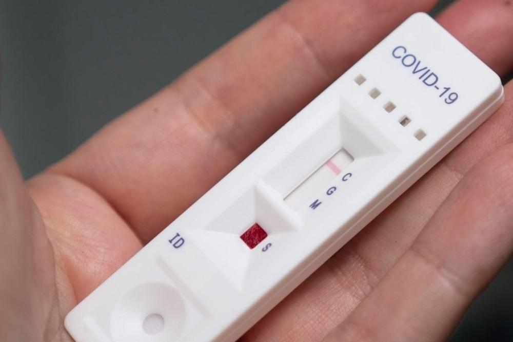 Test sierologici a docenti e ATA: c'è l'ok del Ministero