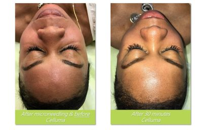 After Micro-Needling