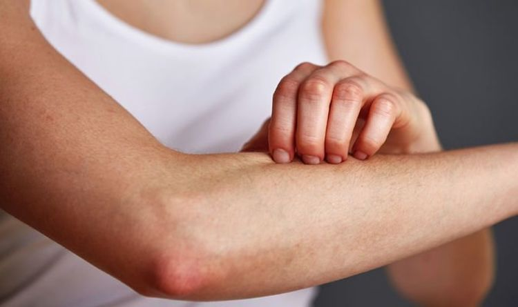 Vitamin B12 deficiency: White spots on your forearms is a lesser-known sign of low levels