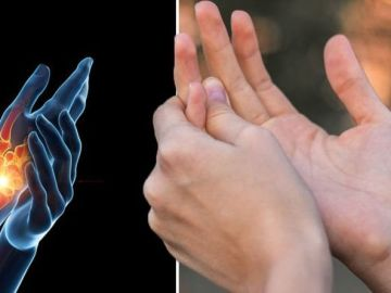 Rheumatoid arthritis symptoms: 'Spots on fingers' and six other less obvious symptoms
