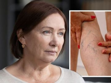 Consultant surgeon explains why varicose veins are a health risk