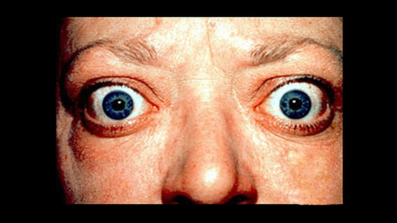 Even Inactive Thyroid Eye Disease Adversely Impacts Patients