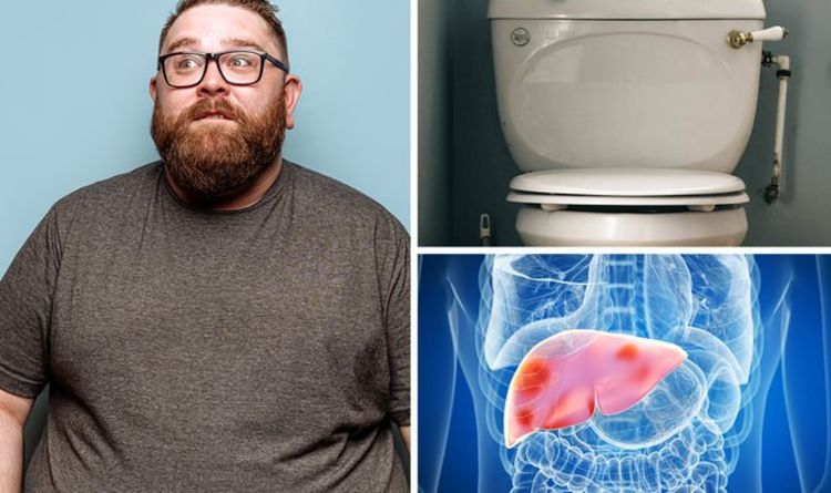 Fatty liver disease symptoms: The texture of your poo can indicate if your organ is damage