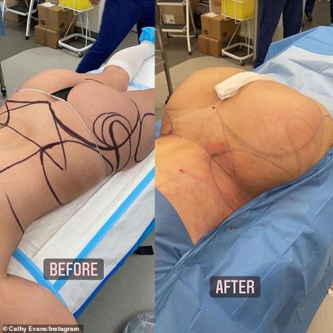 Artificial curves: Cathy made headlines two months ago after she underwent a $30,000 surgical makeover, including liposuction and a Brazilian butt lift (which involves transferring fat into the bottom)
