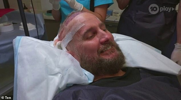 'I get self conscious when we're swinging': The tradie admitted that his baldness has been a huge problem when it comes to his promiscuous sex life, which has led him to seek out a hair transplant