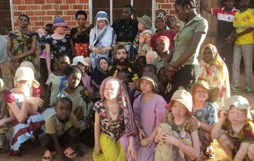 Albinos in Ukerewe