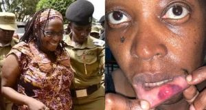 LDU Woman Punched Me Hard On My Lips - Stella Nyanzi Exposes Bruises