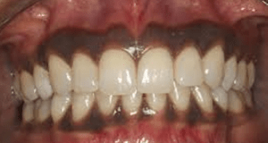 The Most Common Reasons You Have Black Gums