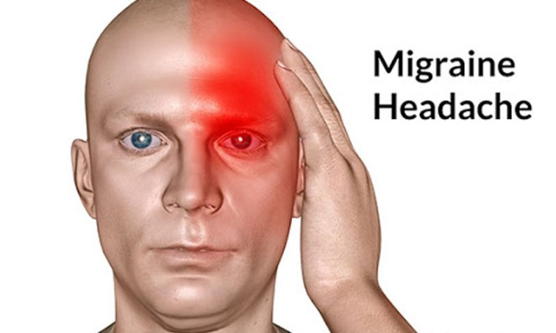 how to cure migraine pain