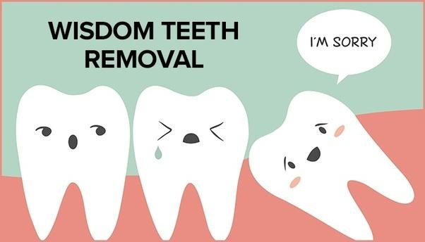 5 Advantages of Wisdom Teeth Extraction