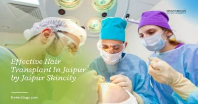 Effective Hair Transplant In Jaipur by Jaipur Skincity