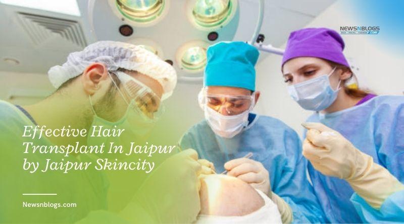 Effective Hair Transplant In Jaipur by Jaipur Skincity