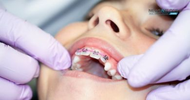 3 Critical Things to Do Before You Get Braces