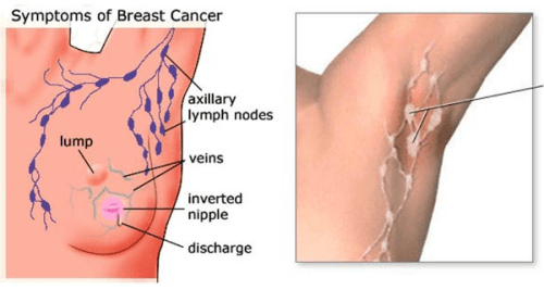 How To Prevent Breast Cancer Through An Armpit Detox News Of