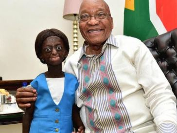 Sad! South African girl who suffers from rare genetic disorder dies