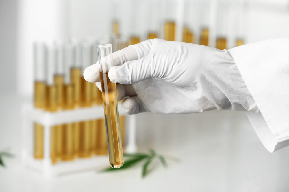 Could CBD with THC Show Up in a Urine Test?