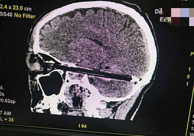 В Ростове спасли мужчину с шариковой ручкой в голове, пронзившей мозг через глаз
