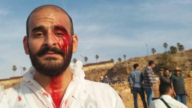 An injured Whard Sleiman | Source: Facebook/FirasBouZeineddine