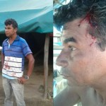 Gold miners attacked  and beaten by other miners and gunmen in mining spot row