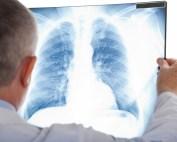 """Legea combaterii tuberculozei vine în sprijinul bolnavilor. """"Se va reduce riscul de recidivă"""