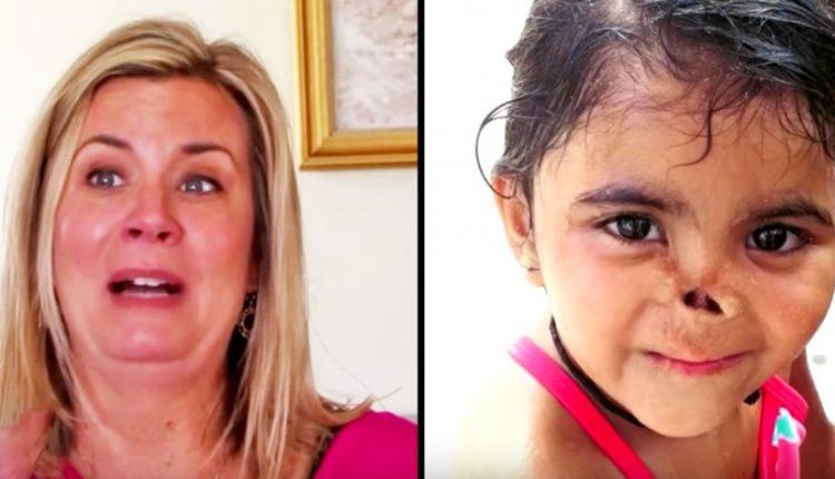 Γυναίκα υιοθέτησε κοριτσάκι που τα ζώα του είχαν κατασπαράξει τη μύτη και χρόνια μετά η αγάπη της το μεταμόρφωσε…