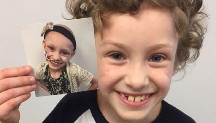 40 φωτογραφίες πριν και μετά ανθρώπων που πάλεψαν με τον καρκίνο και νίκησαν