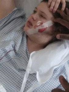 "Mother of OHIO teen ""accidentally"" shot in face: 'God was definitely with her'!"