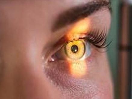 आपकी नजर चुरा लेता है-ग्लोकोमा