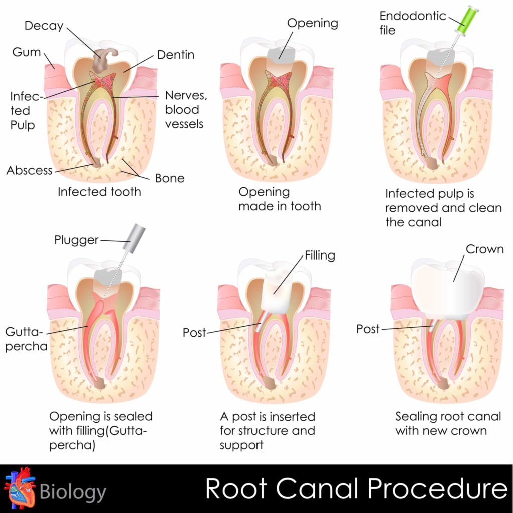 hight resolution of it is important to treat infections quickly as delaying treatment can result in severe tooth pain and abscess