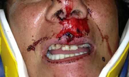 dental injury